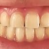 【歯列矯正の限界】歯列矯正によって作った歯列は人工的