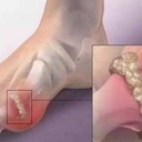 gout【痛風】は生涯の友…