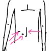 胃切除の手術跡 胃がん
