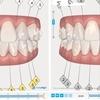 インビザライン治療計画イメージ画像