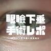 【手術後写真公開】「秋葉原シティクリニック」で、保険適用で眼瞼下垂手術を受けた記録と口コミ感想ブログ【健康保険適用診療(適応)】