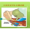尿失禁手術後の排尿困難と尿失禁手術の歴史(4)(改訂版)