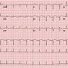 症例60:4日間持続する胸痛を訴える37歳女性(J Emerg Med. 2020 Nov;59(5):e183-e185.)
