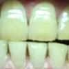 歯が白くなる歯磨きを使ってみる アパガード プレミオ プレミアムタイプ  5日目