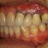歯茎の黒いのを治すのはオールセラミックだけだと難しい場合もあります。