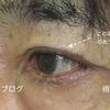 まぶたのたるみ取り・皮膚切除と二重形成 男性 眼瞼下垂 詳しい経過