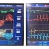 角度信号生成の詳細