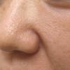 毛穴の治療例・フラクショナルCO2レーザー