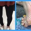 O脚の弊害