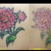 圧倒的症例数 ピコレーザー(エンライトン)でタトゥーを除去をしています。 3回治療後です。5色