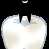 バンクーバーで奥歯の大きな虫歯に気づくワニ