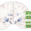 パーキンソン病を知る パーキンソン病は大脳基底核の変性疾患に分類される
