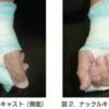 基節骨・中手骨骨折に対するナックルキャスト固定