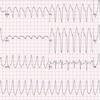症例82:数時間にわたり動悸が持続する32歳男性(Am J Emerg Med. 2021 Jan;39:255.e1-255.e3.)