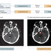 Deep Learning–Assisted Diagnosis of Cerebral Aneurysms Using the HeadXNet Model