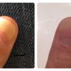 爪甲剥離症(そうこうはくりしょう)が改善しました