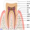 治したところがまた虫歯になるのはなんで?