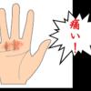 【ばね指】のその後、奥歯が痛いっ!
