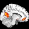 脳に直接売り込むニューロマーケティング