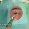 霰粒腫(さんりゅうしゅ)の手術を体験しました。