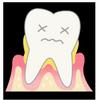 新発見 歯周病を早期に予防しておくとボケないわけ(可能性ですw)