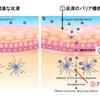 アトピー性皮膚炎について解説します