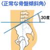 【解剖・生理学】骨盤の構造と特徴(ローザーネラトン線やヤコビー線等)