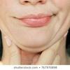 #ダイエットや老化しても、顔のタルミに効果的な食材とは