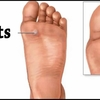 Hammer Toes Definition