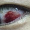 朝起きたらいきなり白目から出血?! 結膜下出血とは・・・