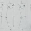 変形性股関節症に伴う隣接関節障害①Coxitis knee(コクサイティスニー)