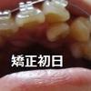 【歯列矯正】開始から90日までの画像・下からのアングル。