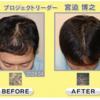 AGA(男性型薄毛症)に効く科学的な実証を得た薬はこの2種類だけです