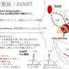 不整脈:上室性頻脈(SVT) AVNRT(房室結節回帰性頻拍)について  〜基本46〜