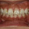 どうしたらモデルさんのようなきれいな歯になれるのでしょうか? 〜変色歯編〜