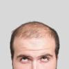 ⑥遺伝子検査付きペルソナ育毛剤「Persona」ってどんな育毛剤?