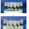 お久しぶりです、34MDDTです。113回歯科医師国家試験を振り返る企画スタートです!