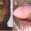 症例58:発熱と増悪する頸部痛で受診した50歳男性(BMJ. 2020 Oct 22;371:m3395.)