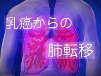 乳癌からの肺転移について<乳がんブログVol.328>