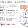 心室中隔欠損症(VSD)の孔の位置について〜看護師より小児循環器医に必要な知識 右室の解剖から 疾患21