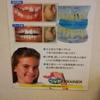子供の歯列矯正とリテーナー