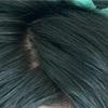 【円形脱毛症】ステロイド注射17回目&紫外線照射12回目