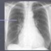 肺動脈楔入圧とレントゲン所見の関係