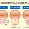 宮本亜門さんも発症した!前立腺がんについて専門医が解説!