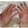 症例:CCJM 83歳男性 手が赤い