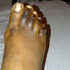 Hammer Toe Issues