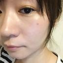 トラブル肌 スローエイジングfatimaの美容日誌[大阪 四ツ橋 心斎橋]