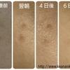【シミ取り1~6日後】美容皮膚科でレーザー治療(Qスイッチアレキサンドライトレーザー)