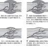 30代の大腿骨頸部骨折日記15〜完治(ほぼ)