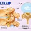 脊柱管狭窄症の手術で痛みは消えたが痺れがとれない 77歳女性